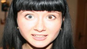 Разного цвета глаз у людей
