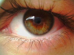 Отек сетчатки глаза лечение