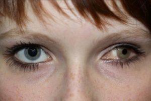 Эрозия роговицы глаза