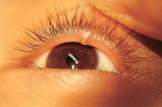 аллергия на глазах у собаки