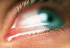 Глазные капли после травмы глаза