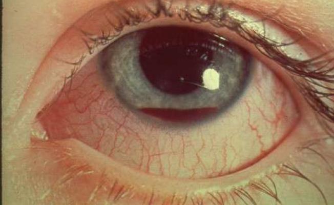 Почему в глазах двоится при сотрясении