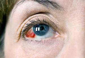 Лопнул капилляр в глазу