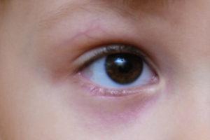 Потемнение кожи под глазами