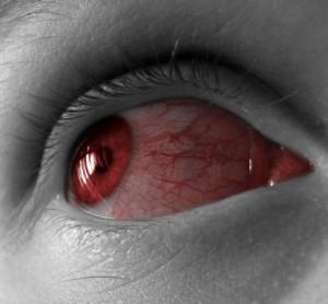 Красные сосудов в глазах