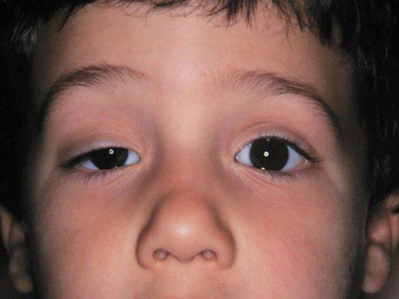 Герпес на губах лечение, фото, мазь от герпеса, как