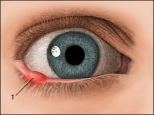 Внутренний ячмень в глазу