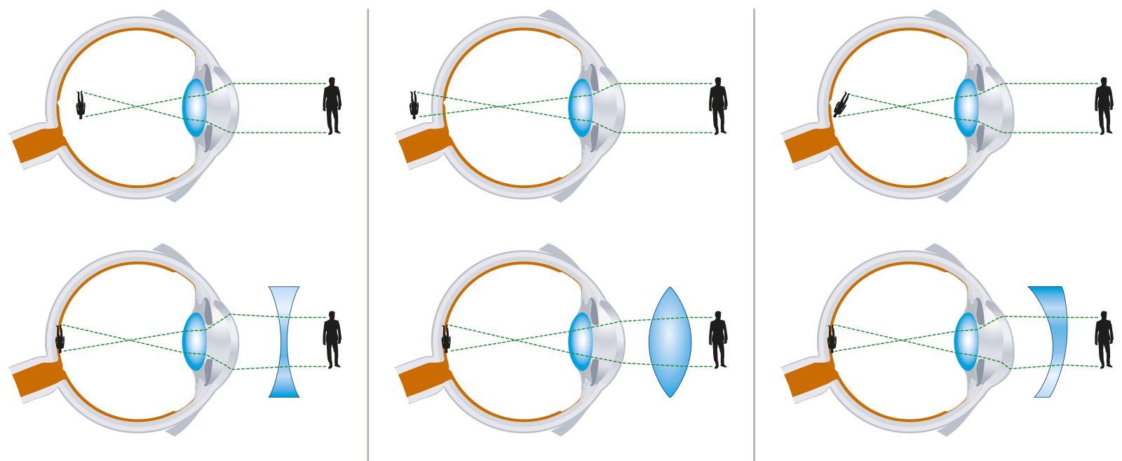 Что делать при глазном давлении и симптомы