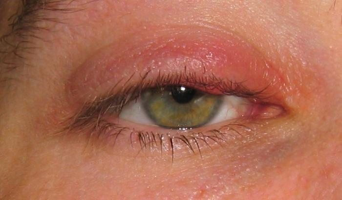 Аллергия на тепло у ребенка 29