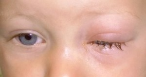 Конъюнктивит у ребенка в 3 года