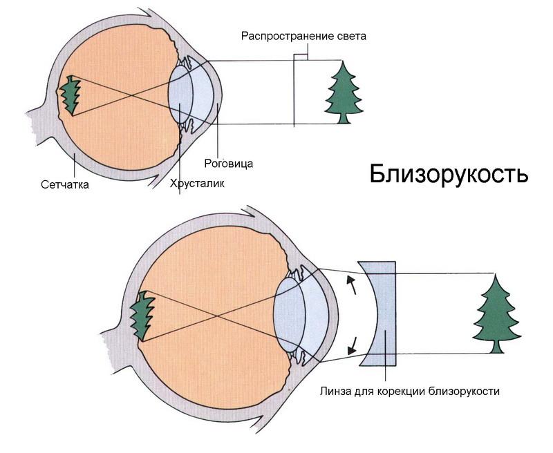 Перфорированные очки для коррекции зрения купить