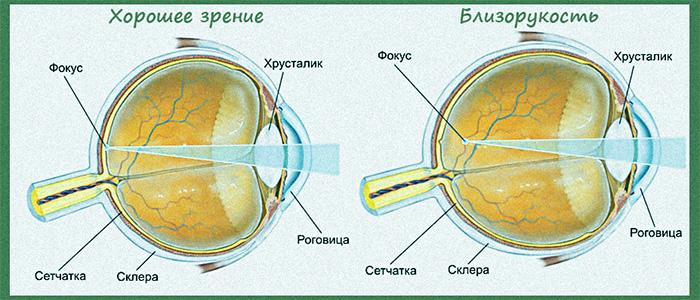 У ребенка 0 6 зрение одного глаза