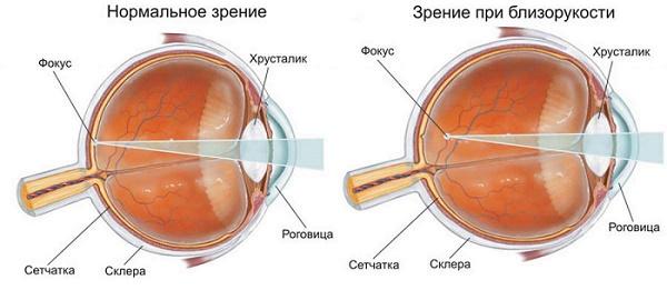 Центр восстановления зрения краснова