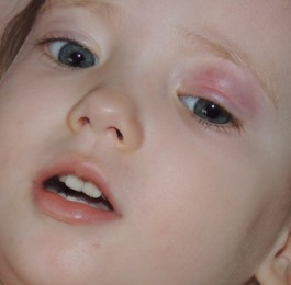 Маска shary плацентарно-коллагеновая для глаз женьшень отзывы