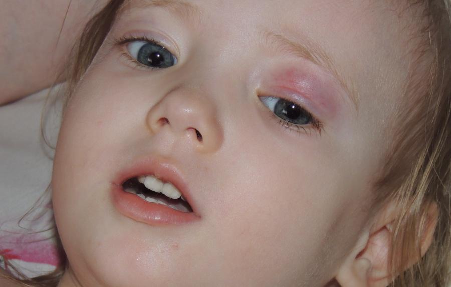 Шишка под глазом у ребенка. Шишка у ребенка. Zdorovyj 14
