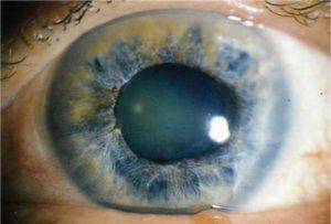 Открытоугольная глаукома