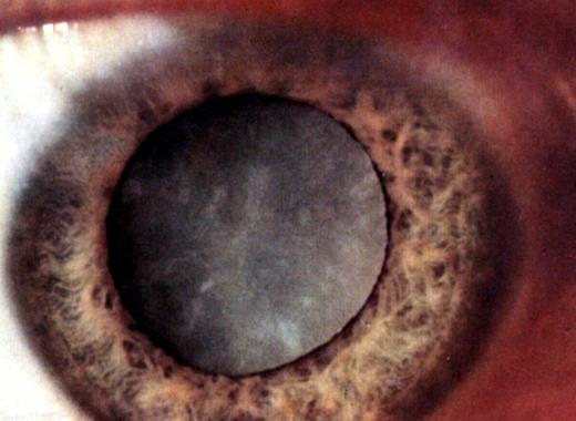 Витамины при катаракте в таблетках