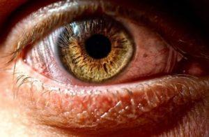 Сухой глаз капли какие лучше