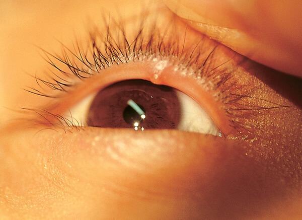 ячмень в глазу как лечить это тот