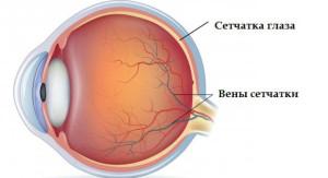 Ангиопатия сосудов сетчатки глаза