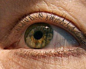 Макулодистрофия сетчатки глаза
