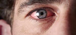 острое воспаление глазницы