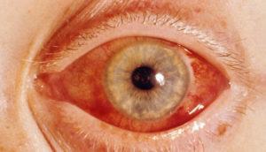 лечится первичная глаукома