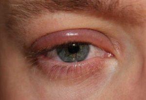 лечение аллергического блефарита