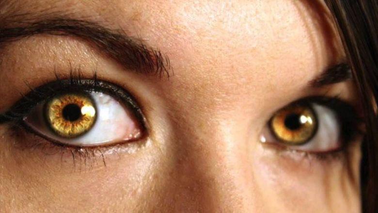 Желтые глаза у человека радужка